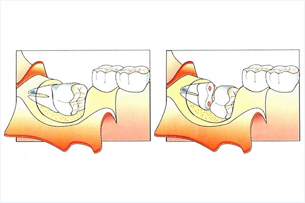 Étapes de la chirurgie dentaire