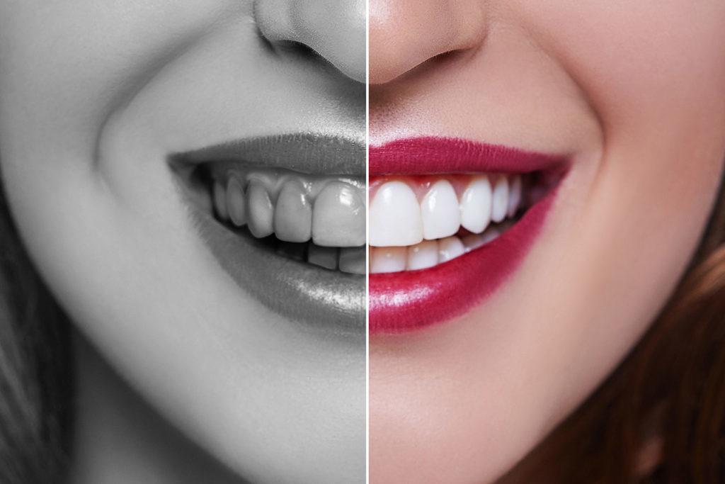 couronne dentaire les etapes