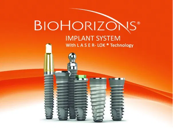 Quelle marque d'implant dentaire choisir ?