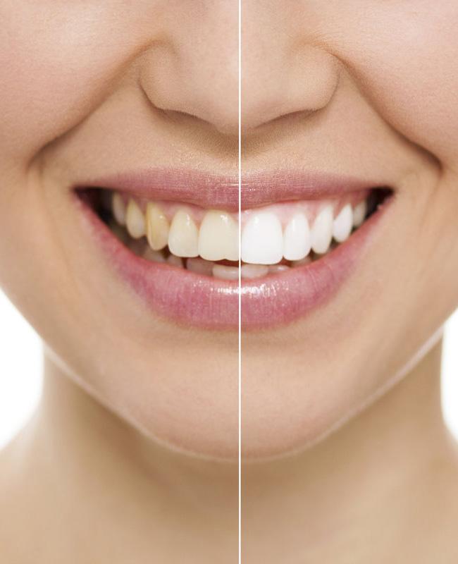 Implant dentaire Tunisie: Posez un implant dentaire et remplacez vos dents manquantes
