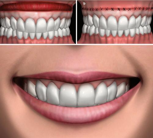 Repositionnement de la lèvre: Tout savoir